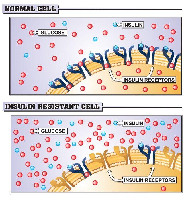 Jak můžuzvýšit inzulinovou senzitivitu?