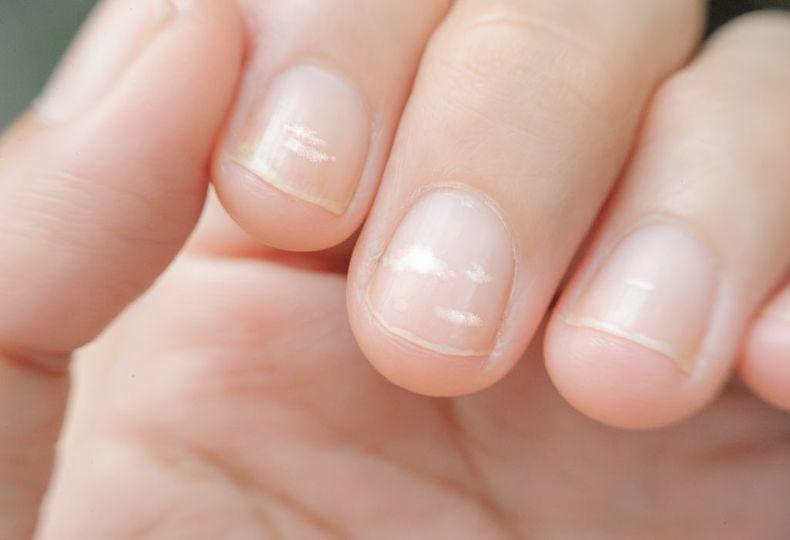 Čím sú spôsobené biele škvrny na nechtoch?